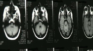 Stock Video Footage of multiple xray mri brain scans
