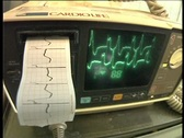 Medical instrument for measuring ECG Stock Footage