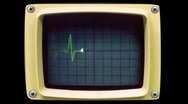 EKG Heart Monitor with alpha channel matte Stock Footage