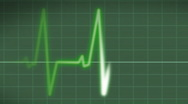 Stock Video Footage of EKG Heart Monitor with pulse