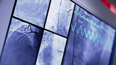 Heart Scanner on Hospital Monitor Stock Footage