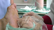 Stock Video Footage of Injured Diabetic Foot