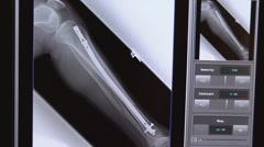 Xray of broken lower leg 02 Stock Footage