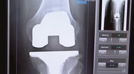Xray total knee replacement Stock Footage