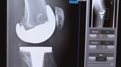 Xray of total knee replacement 02 Stock Footage