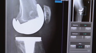 Stock Video Footage of xray of total knee replacement 02