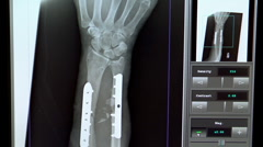 xray of broken forearm with plate and screws - stock footage
