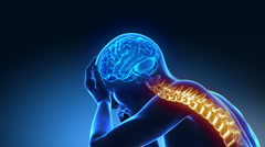 Hurt spine - pain rising up to the brain - stock footage