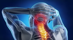 Backbone pain problem Stock Footage