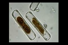 Diatoms Stock Footage