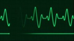 ECG Electrocardiogram Pulse - stock footage