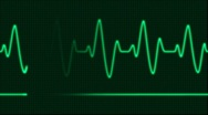 Stock Video Footage of ECG Electrocardiogram Pulse