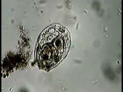 Stock Video Footage of Rotifer with feeding cilia and foot joint.