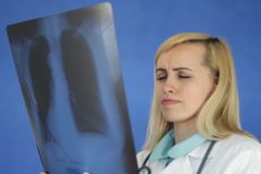 Female doctor looking at xray of human lungs on blue background NTSC Stock Footage