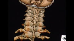 Incredible 64 Slice CT Scan of spine, head, and hip areas Stock Footage