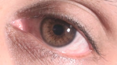 Close-up of a tired red eye Stock Footage