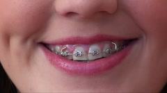 brace on teeth 16 year old girl with Stock Footage