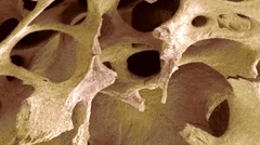 Bone tissue, SEM Stock Footage