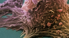 Ovarian cancer cell, SEM Stock Footage
