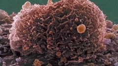 Ovarian cancer cell, SEM Stock Footage