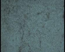 Microscope-lafeta-lotal-sperm Stock Footage