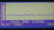 Cardiogram in the hospital Stock Footage