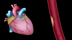 Heart attack, hd animation Stock Footage