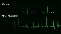 Atrial fibrillation ecg loop Stock Footage