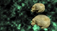 Hydrocephalic Human Skull Animation, side view on BG with matte - 24P Stock Footage