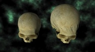 Hydrocephalic Human Skull Animation, top view on BG with matte - 24P Stock Footage