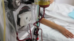 Blood purification procedure.Pasmapheresis. - stock footage
