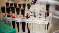 Blood analysis Stock Footage