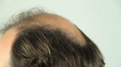 Stock Video Footage of balding head