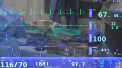 Interesting vitals montior screen with reflection of surgery being performed. Stock Footage