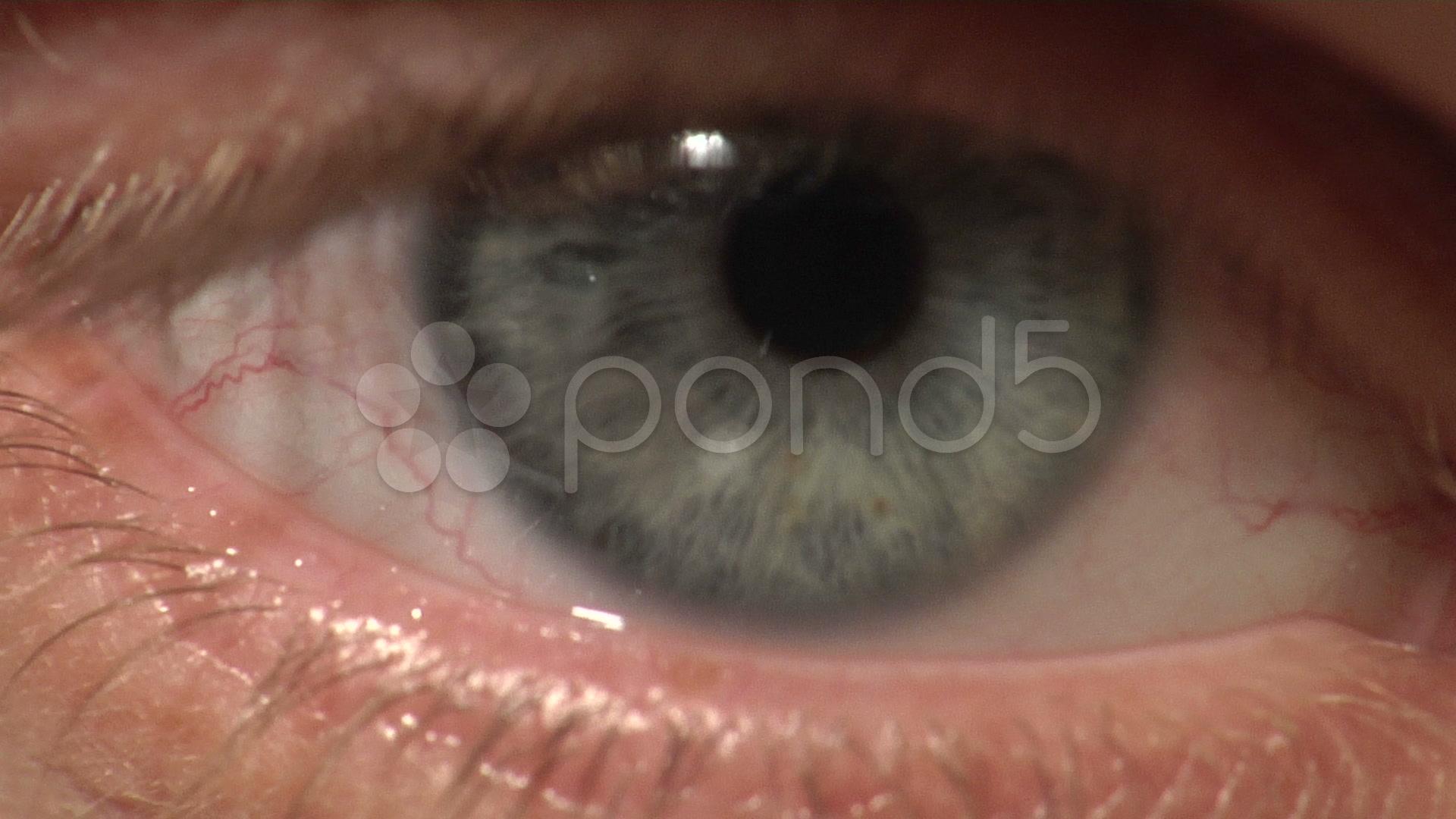 1080P Blue Pupil Human...