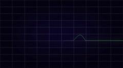ECG / EKG Heart Monitor Normal Sinus Rhythm Loop Stock Footage