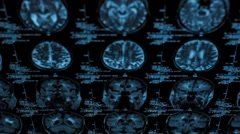 Tracking of a CT scan with on dark background - stock footage