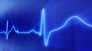 Stock Video Footage of seamless loop blue background EKG electrocardiogram pulse real waveform