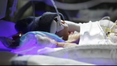 premature baby - stock footage