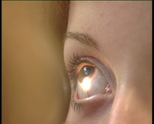 Ophthalmologic examination of the eye in optic. Stock Footage