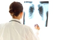 Female doctor looking at xray of human lungs, isolated Stock Footage