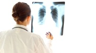 Stock Video Footage of Female doctor looking at xray of human lungs, isolated