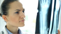 Female doctor looking at xray of human hand, close up Stock Footage