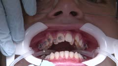 At the orthodontist cabinet Stock Footage