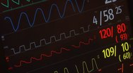 Cardiogram. Multi shot. Stock Footage