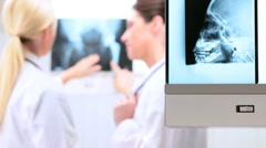 Female Doctors Inspecting X-Ray Results Stock Footage