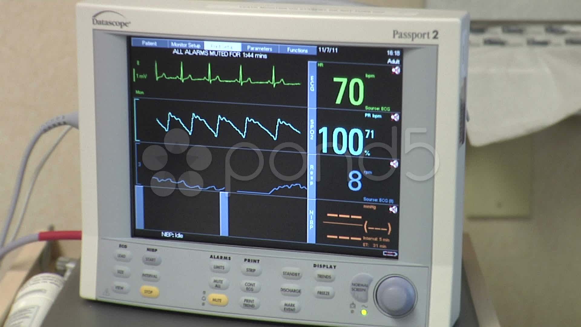 Medical Ekg Heart Rate Monitor At Hospital Footage 8983703