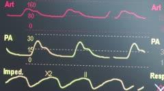 EKG, ECG, Heart Monitor. Stock Footage