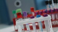 Stock Video Footage of Blood analysis. Test tubes.