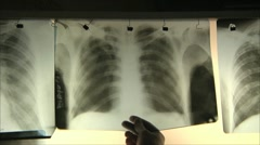 doctors regard X-ray 2 - stock footage